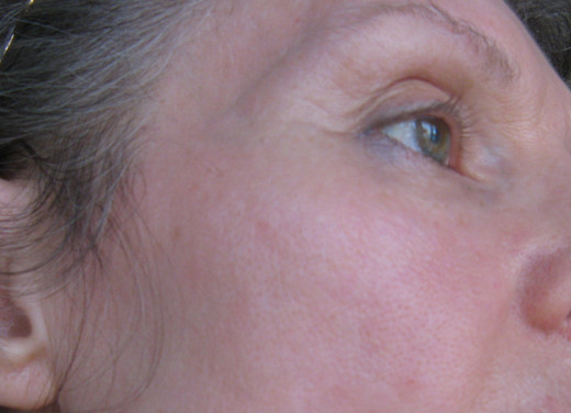 This is my skin aged 55, three years post resetting my low body temperature and about 18 months after introducing vitamin C. Years of acne will never allow it to be perfect, but I am delighted with the results.