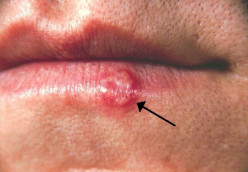 My Cure for Cold Sores or Herpes Simplex