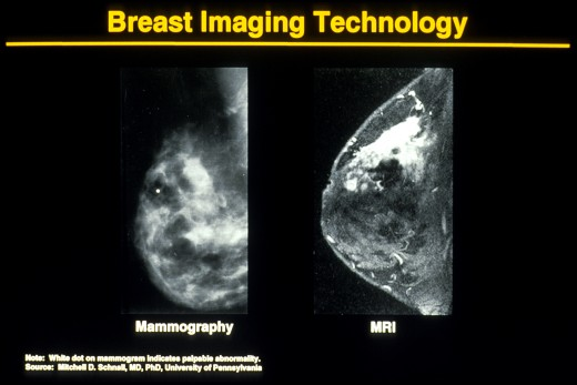 MRI offers advantages over mammogram, particularly with dense breasts. By Unknown Photographer [Public domain], via Wikimedia Commons