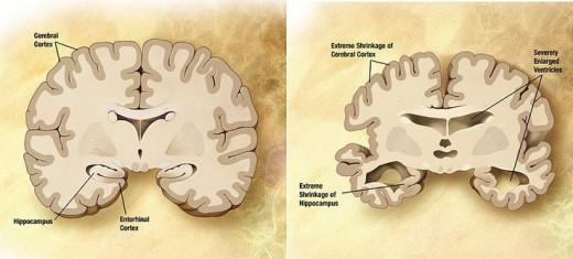 No Alzheimers versus Alzheimers Brain Physiology