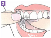 Important when flossing is to bend the floss wire around the edges of the tooth