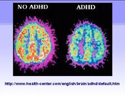 Differences in the Central Nervous System with ADHD patient