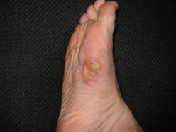 How To Deal With Blisters