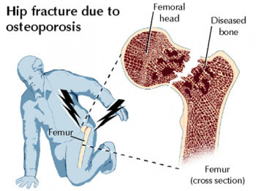 Fracture Neck of the femur Due to Osteoporosis