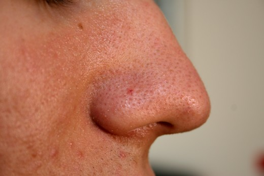 Why is it that the nose gets so many blackheads?