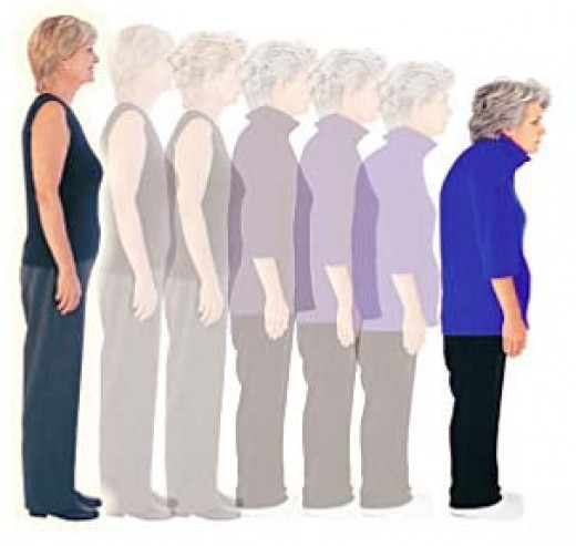 Progress of Osteoporosis in the bones of the Spine with Age