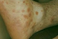 Maculopapular rash – Symptoms, Treatment, Causes, Pictures