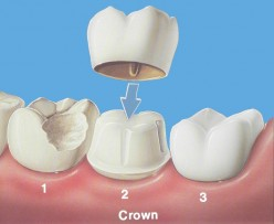 About Dental Crowns