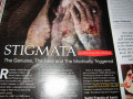 What is the Stigmata: Real, Fake, or Medically Triggered?