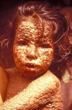 Disease upon the innocent (smallpox)