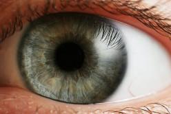 My LASIK Eye Surgery