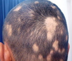 Alopecia Areata - Pictures, Symptoms, Causes, Treatment, Diet