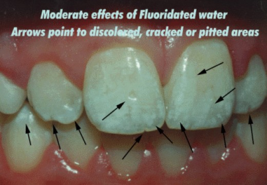 Teeth Showing Examples of Fluorosis