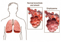 Emphysema - Pictures, Life Expectancy, Treatment, Symptoms, Causes