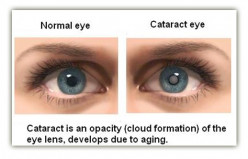 Cataracts - Pictures, Symptoms, Causes, Diagnosis, Treatment, Surgery, Complications