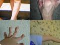 Ehlers-Danlos Syndrome – Pictures, Symptoms, Causes, Treatment