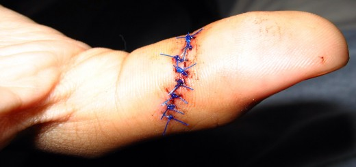 Non-absorbable sutures or stitches