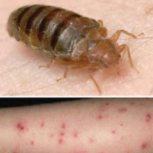 What do bed bug bites look like?