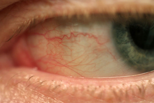 Bloodshot eyes can be due to dryness