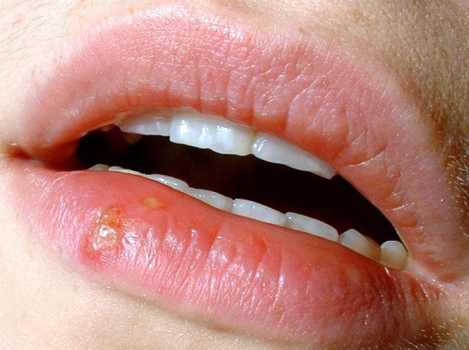 Herpes labialis (cold sore)
