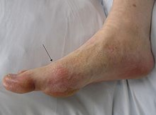 Gout presenting in the metatarsal-phalangeal joint of the big toe: Note the slight redness of the skin overlying the joint.