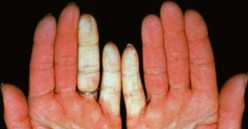 Scleroderma - Pictures, Symptoms, Causes, Diagnosis, Treatment