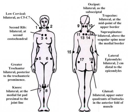 Pain Spots