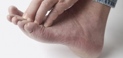 Pain Relief for Feet - Aching foot Treatments