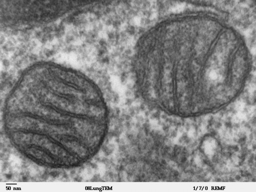 The mitochondria that are present in all our cells are now thought to be bacterial in origin.