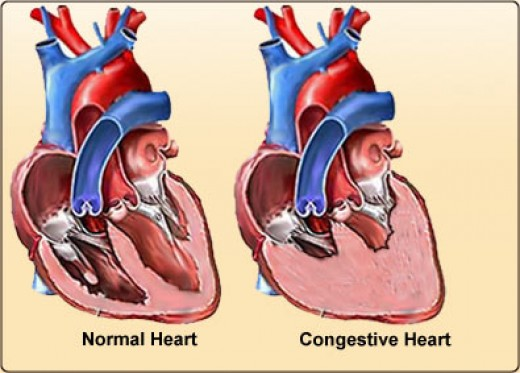 progressive ppt diagram congestive heart failure basics hubpages  congestive heart failure basics hubpages