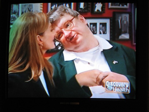 "Kim Peek was the inspiration for the movie ""Rainman."""