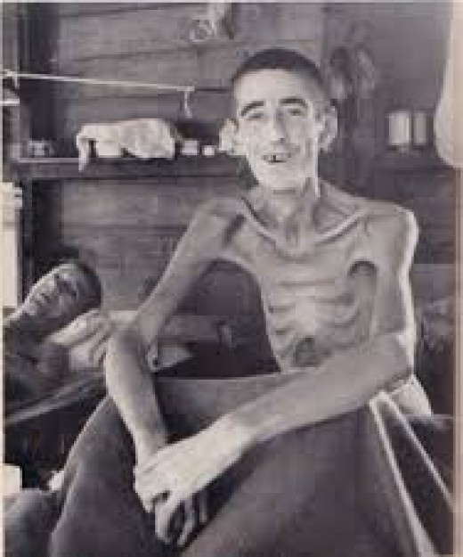 In the film, they just couldn't get anyone to look this emaciated.  But this is what happened to POWs in Japanese prison campls