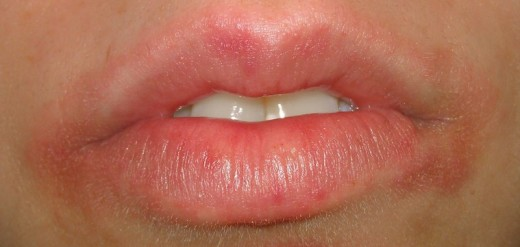 That Rash Around Your Mouth Might Be Perioral Dermatitis