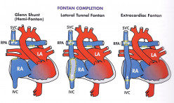 Left To Right Shunt Lesions: Atrial Septal Defect (ASD)