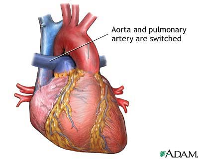 The two circulations are parallel, independent of each other. Right ventricle pumps blood into the aorta and this blood is returned by the systemic veins and the vena cavae into the right atrium