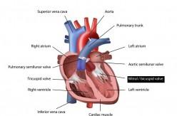 Other Congenital Cyanotic Heart Diseases