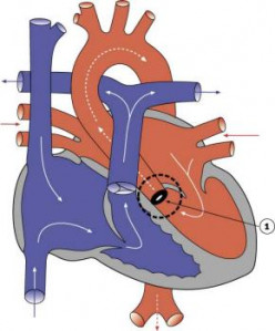 Clinical Features, Course, Prognosis And Management Of Aortic Stenosis