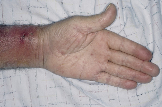 Cutaneous embolism: This leads to painful red raised lesions called Janeway lesions more numeroud on the palms and soles