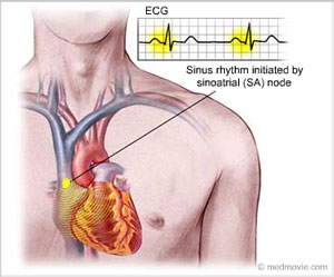 From the sinus node, the impulse traverses through the atria to the atrioventricular node (A-V node). There are three specialized pathways in the atria which conduct impulses from the sinus node to the A-V node