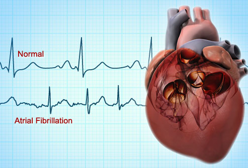 This is the condition in which the coordinated contraction of the atrium is abolished and the atrial muscle fibrillates. Abnormality of atrial activation is caused by impulses arising from different foci at the rate of 400-600/min.
