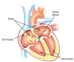 Heart Block: The Clinical Significance Of It's Degrees And Etiology