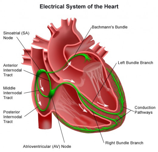 The interference by other electric and magnetic fields in the environment is also minimized. It is ideal to implant pacemakers early to avoid the development of Stokes-Adams attacks and sudden death.