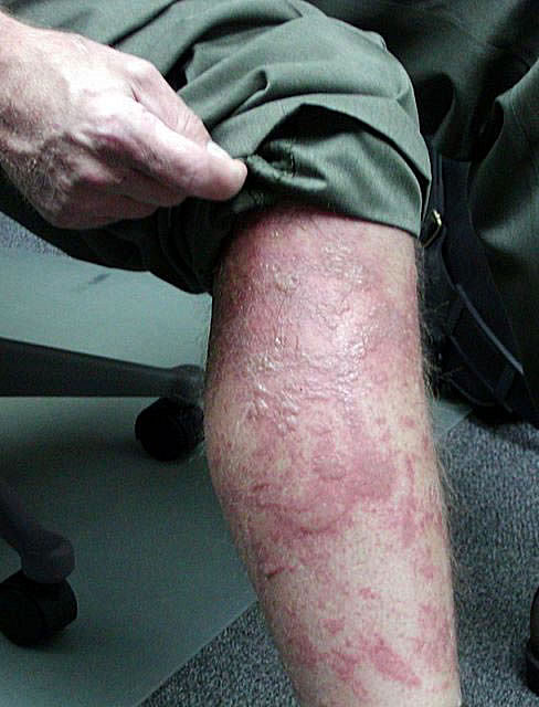 "Severe dermatitis out in the wild with no medical support, can overwhelm your bodies immune system, resulting in systemic infection, and raging ""cellulitis"""