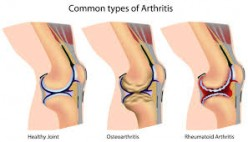 Arthritis & Rheumatism-Treatments