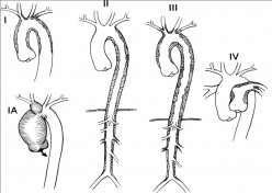 Diseases Of The Aorta: Nonspecific Aortoarteritis