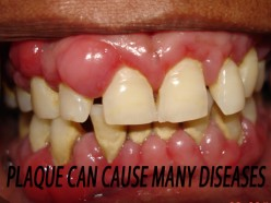 Can Dental Plaque Cause Heart Disease? You bet...and many other diseases!