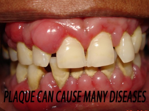 Plaque can cause more than gum disease!!