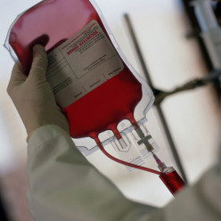 Clinical Significance Of Blood Transfusion, Plasmaphoresis, Blood Groups And Relevance Of Blood Bank
