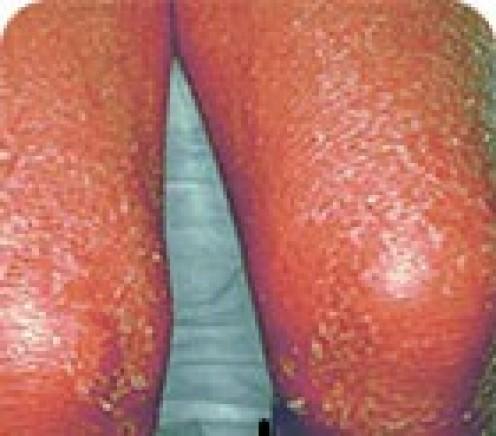 Erythrodermic psoriasis