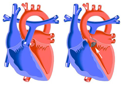 The stenotic aortic valve is most often bicuspid, although tricuspid aortic valve may also become stenotic in the younger age group. Critical aortic stenosis produces congestive heart failure in infancy